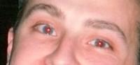Occhi rossi, 3