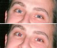 Occhi rossi, 11